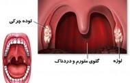درمان گلو درد چرکی