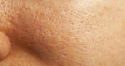 منافذ پوست