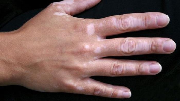 درمان برص با سیر