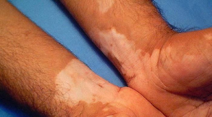 درمان ویتیلیگو با لیزر
