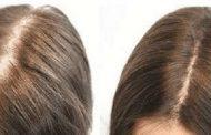 بهترین روش برای درمان ریزش مو