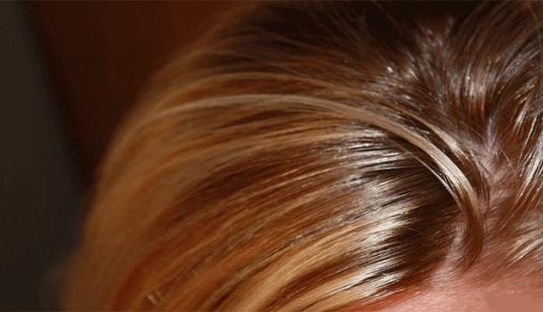 موثرترین درمان های خانگی برای موهای چرب