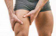 درمان های سریع تیرگی کشاله ران