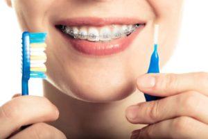 ارتودنسی - بهداشت دهان و دندان